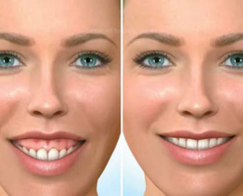 gummy smile from vertical maxillary excess gummy smile specialist boston
