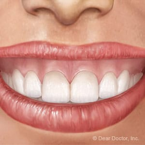 gummy smile with lip rising too high; corrected by lip lowering surgery image boston gummy smile specialist