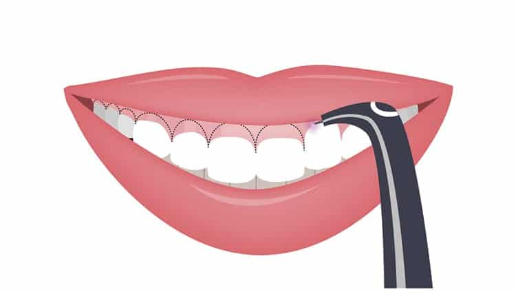 gummy smile with short teeth; corrected by gingivectomy image boston gummy smile specialist