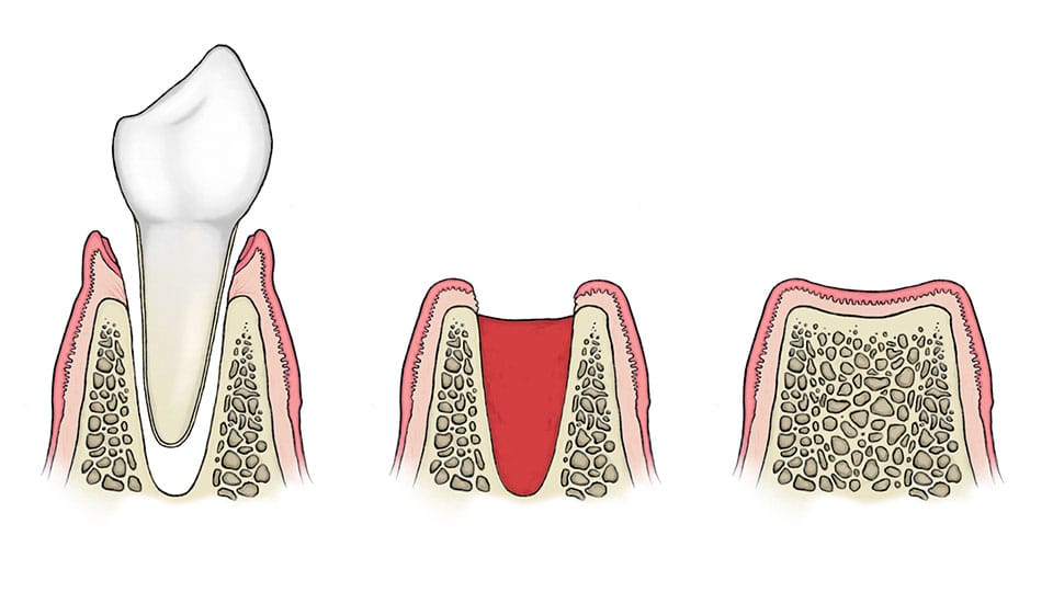 how long before normal diet tooth extraction