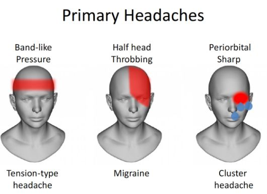 How Tmj Headaches Can Mislead Your Search For Headache Relief